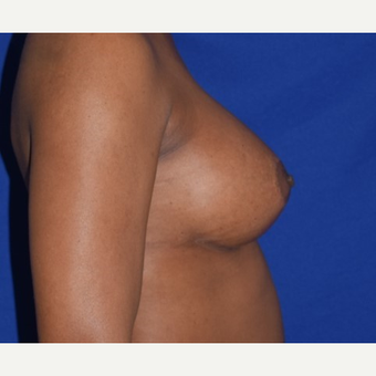 35-44 year old woman treated with Breast Augmentation after 2986000