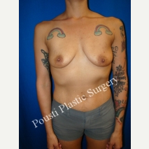 25-34 year old woman treated with Mentor Breast Implants before 3248226