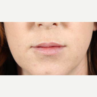 25-34 year old woman treated with Lip Augmentation after 3724599