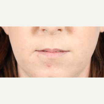 25-34 year old woman treated with Lip Augmentation before 3724599