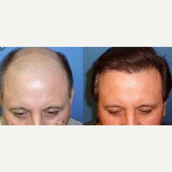 45-54 year old woman treated with Hair Transplant
