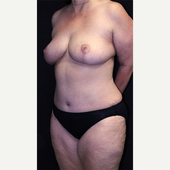 Breast Reduction after 3332852