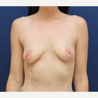 27 year old female, 350cc silicone gel Mentor high profile breast implants, submuscular before 2998815