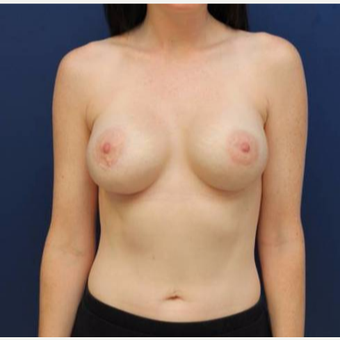 27 year old female, 350cc silicone gel Mentor high profile breast implants, submuscular after 2998815