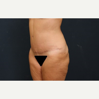 45-54 year old woman treated with Tummy Tuck after 3344982
