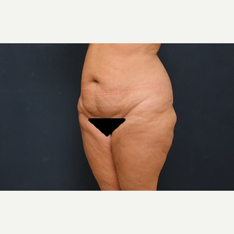 45-54 year old woman treated with Tummy Tuck before 3344982
