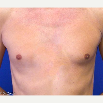 35-44 year old man treated with Pec Implants before 3093282