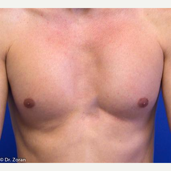 35-44 year old man treated with Pec Implants after 3093282