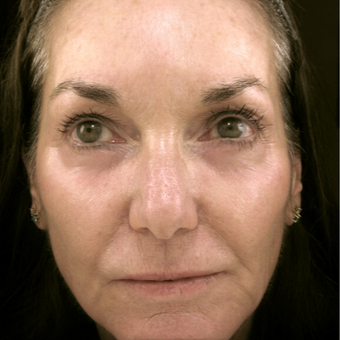 55-64 year old woman treated with Eyelid Surgery after 3490075