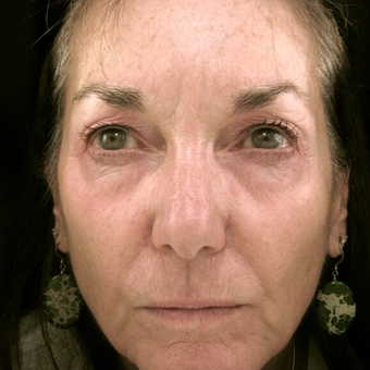 55-64 year old woman treated with Eyelid Surgery before 3490075