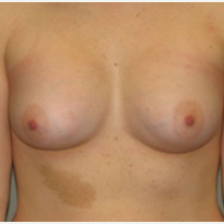 18-24 year old woman treated with Breast Augmentation after 3282290