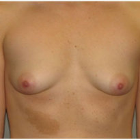 18-24 year old woman treated with Breast Augmentation before 3282290