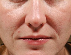 Juvederm before 3378808