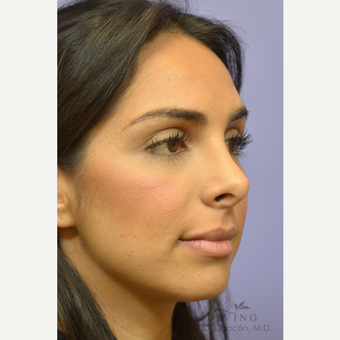 25-34 year old woman treated with Rhinoplasty before 3391969