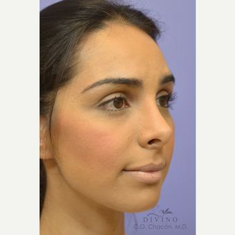 25-34 year old woman treated with Rhinoplasty after 3391969