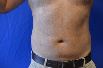 38 y/o male treated with SmartLipo Triplex to his abdomen/flanks before 1261774