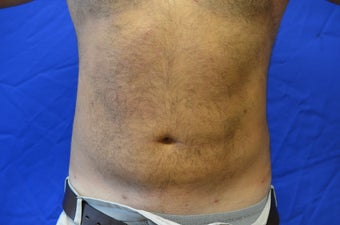 38 y/o male treated with SmartLipo Triplex to his abdomen/flanks after 1261774