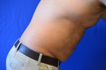 38 y/o male treated with SmartLipo Triplex to his abdomen/flanks 1261774