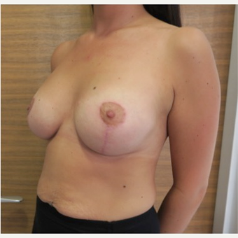 25-34 year old woman treated with Breast Lift with Implants after 2989407