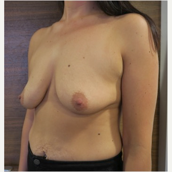 25-34 year old woman treated with Breast Lift with Implants before 2989407