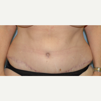 45-54 year old woman treated with Tummy Tuck after 3266871