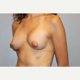 25-34 year old woman treated with Breast Augmentation after 3569775