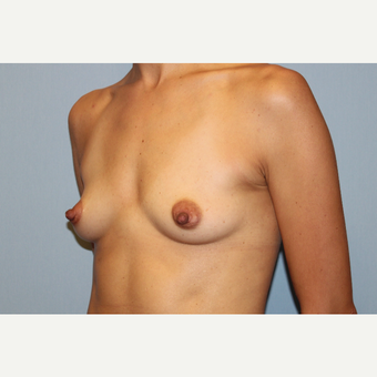 25-34 year old woman treated with Breast Augmentation before 3569775