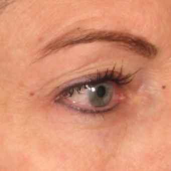 54 year old woman treated with Ultherapy after 1578332