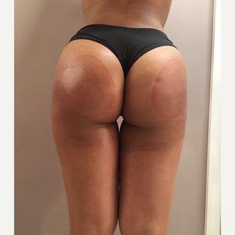 18-24 year old woman treated with Brazilian Butt Lift after 3168790
