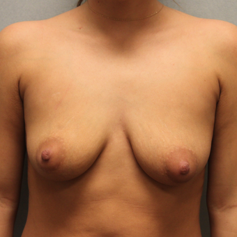 18-24 year old woman treated with Breast Augmentation before 3624660