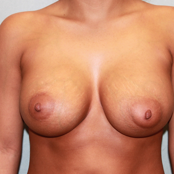 18-24 year old woman treated with Breast Augmentation after 3624660