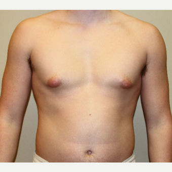 18-24 year old man treated with Male Breast Reduction before 3215449