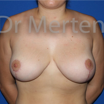 Breast Reduction after 3681239