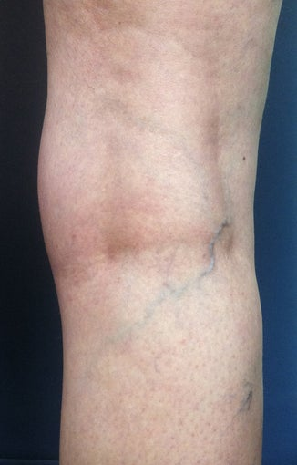 Before & After Leg Vein Treatment in San Diego  before 931539