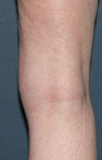 Before & After Leg Vein Treatment in San Diego  after 931539