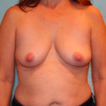 48 year old woman underwent Breast Augmentation with 330 cc Ideal Implants before 3073175