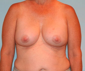 48 year old woman underwent Breast Augmentation with 330 cc Ideal Implants after 3073175
