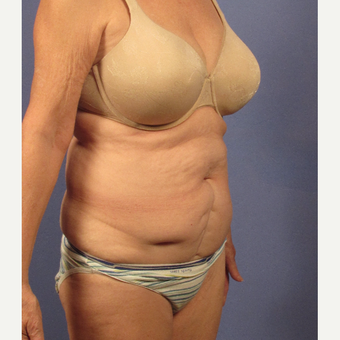 55-64 year old woman treated with Tummy Tuck before 3095729