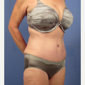 55-64 year old woman treated with Tummy Tuck after 3095729
