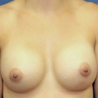 27 year old woman treated with bilateral breast augmentation after 2337182