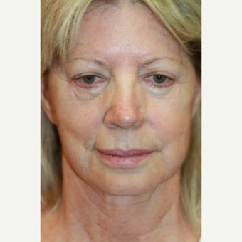 62 year old woman treated with Restylane Silk, Secondary Facelift, and Juvederm before 1782546