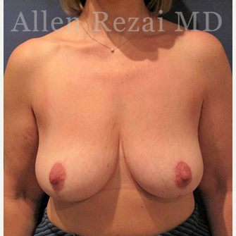 45-54 year old woman treated with Breast Lift/Uplift after 3751587