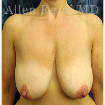45-54 year old woman treated with Breast Lift/Uplift before 3751587