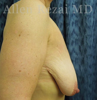 45-54 year old woman treated with Breast Lift/Uplift 3751587