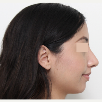 18-24 year old woman treated with Rhinoplasty after 3366356