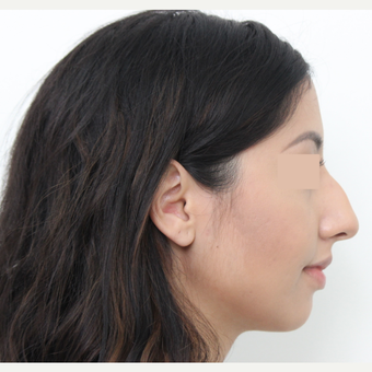 18-24 year old woman treated with Rhinoplasty before 3366356