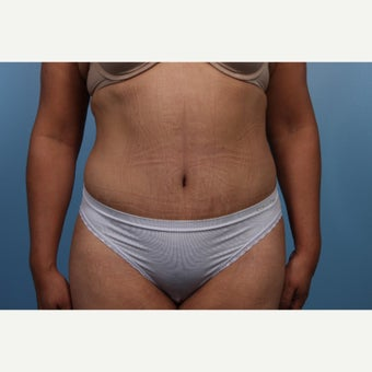 35-44 year old woman treated with Tummy Tuck after 1550283
