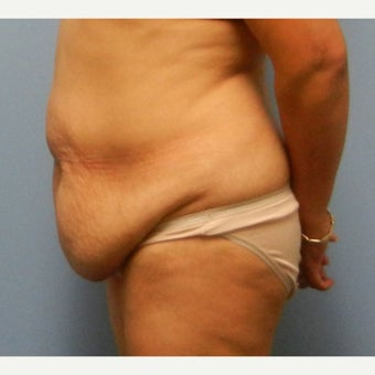 35-44 year old woman treated with Tummy Tuck 1550283