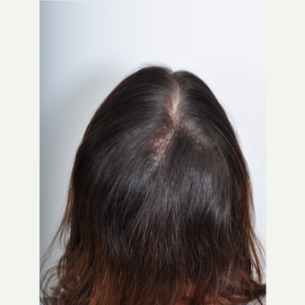 25-34 year old woman treated with PRP for Hair Loss after 2895350