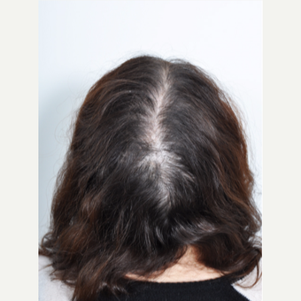 25-34 year old woman treated with PRP for Hair Loss before 2895350